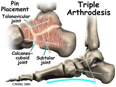 Physical Therapy in Silver Spring and Bowie for Posterior Tibial Tendon Problems