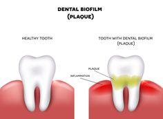 Zubný plak ako príčina dvoch najčastejších ochorení ústnej dutiny - KAMzaKRÁSOU.sk