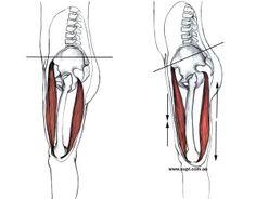 Tight Hip Flexor Overstretched Hamstrings Anterior Pelvic Tilt Back Pain Tight Quads