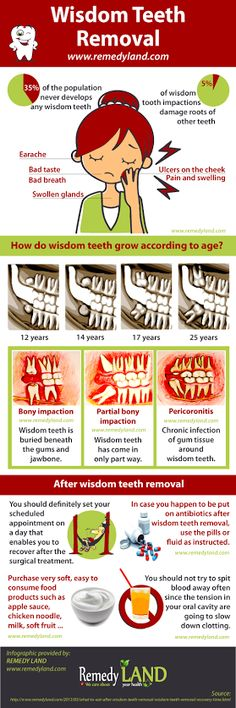 Wisdom teeth aren't always so wise. Here's a quick run down of #WisdomTeethRemoval.