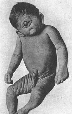 Cyclopia is a rare birth defect where a child is born with one eye in the middle of his or her head. The baby also typically lacks a functional nose. There has been some speculation that the condition may be related to certain cancer treatment drugs and toxins taken by pregnant women.