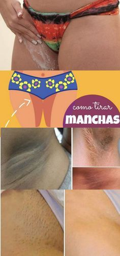 CLAREIE A VIRILHA EM 5 MINUTOS #clarearvirilha #clarearmanchas #manchanapele