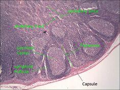 lymph node histology slide   DNWalcker.Com   Laboratory Eight & Nine