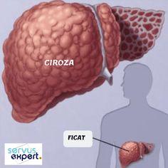 FICAT GRAS. Ciroza. Cancer hepatic. Au legătură? - Good To Know, Cancer, Healthy, Food, Alcohol, Eten, Meals, Diet