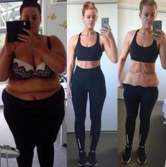 Why this woman's incredibly honest weight loss picture is important