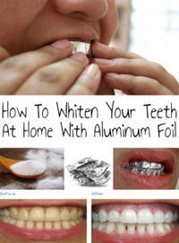 Home teeth whitening helps you a lot when you urgently need to get a beautiful smile. How To Whiten Your Teeth At Home With Aluminum Foil! (Bicarbonato de sódio, papel alumínio e dentifrício) Teeth Whitening Methods, Charcoal Teeth Whitening, Natural Teeth Whitening, Beauty Secrets, Beauty Hacks, Beauty Products, Just In Case, Just For You, Teeth Care