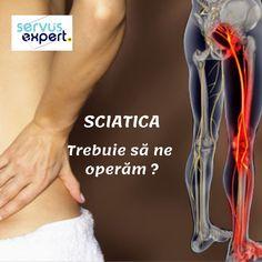 Cel mai frecvent, nervul este iritat și comprimat prin hernierea (deplasarea) unuia dintre discurile intervertebrale de la nivelul coloanei lombare. Compresia va genera inflamație, durere și amorțeală în membrul afectat. Tipic, durerea este unilaterală, doar pe unul dintre membrele inferioare.Deși durerea este severă, se rezolvă în 4-6 săptămâni fără tratament chirurgical. Uneori, însă, se impune intervenția chirurgicală. Sciatica, Fes, Good To Know, Nursing, Health, Medicine, Health Care, Salud, Breastfeeding