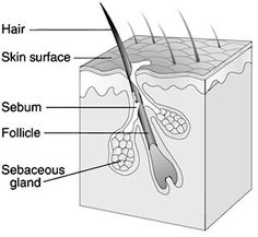 87c425c11751 Acne begins when the pores in the skin become clogged and can no longer  drain sebum