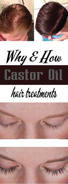 Why Castor oil? miracle product with multiple uses, this oil proves particularly effective to soften your hair, strengthen it and make it shine … Discover its many virtues!Castor oil is a vegetable oi Castor Oil Hair Treatment, Coconut Oil Hair Treatment, Coconut Oil Hair Growth, Coconut Oil Hair Mask, Castor Oil For Skin, Castor Oil For Hair Growth, Oil For Curly Hair, Hair Oil, Beauty Routine Planner