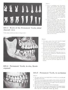 Vintage Framed Anatomy Print Teeth and Roots by maddoxandrose