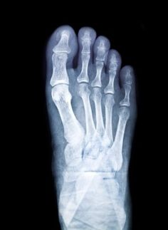 Did you know that stress fractures may happen on your feet when you #run too much? http://www.westlawnpodiatry.com/blog.html