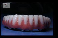 Hybrid dentures, the permanent solution .