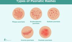 What Causes Rheumatoid Arthritis, Types Of Arthritis, Types Of Rashes, Ra Symptoms, Rashes Remedies, Bacterial Infection