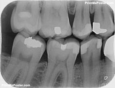 x-ray for check dental caries teeth bad condition poster Dental x-ray for check dental caries teeth bad condition posterDental x-ray for check dental caries teeth bad condition poster Dental Posters, Wisdom Teeth, Dental Health, Cavities, Conditioner, Mousepad, Check, Poster Poster, Bad