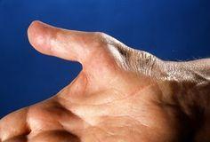 ¿Cansado de Padecer de Tunel Carpiano? Estos 6 Remedios Te Ayudaran a Deshacerte del Tunel Carpiano Naturalmente