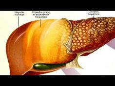 ¿Como curar y limpiar el páncreas y el higado? ¿Cómo desintoxicar el páncreas y el higado? - YouTube