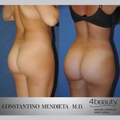 Before and After – Brazilian Butt Lift #BBL #Liposuction #FatTransfer #plasticsurgery #BodyByMendieta ©4beauty