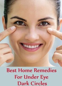 Eczema Remedies 7 Best Home Remedies For Under Eye Dark Circles Eczema Remedies, Home Remedies For Acne, Best Eczema Treatment, Hair Treatments, Home Remedy Teeth Whitening, Dark Circles Makeup, Dark Circle Remedies, Dark Spots On Face, Good Skin