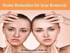 Looking for NO Scars Face Cream for Woman, Buy NO Scars Face Cream for Woman on discount in India. NO Scars Face Cream is best for Scar removal. Pimple Marks, Pimples, Getting Rid Of Scars, Scar Removal Cream, Oily Skin, Good Skin, Glowing Skin, Face And Body, Home Remedies