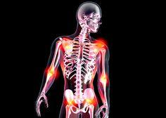 Douleurs diffuses au niveau des muscles, des articulations, des tendons,fatigue intense... Les symptômes de la fibromyalgie peuvent être extrêmement invalidants. En France, le traitement de cette maladie méconnue reste très variable d'un patient à l'autre. Une commission d'enquête parlementaire va se pencher sur cette pathologie afin d'élaborer des recommandations pour une meilleure prise en charge des patients. Chronic Pain, Fibromyalgia, Arthritis, Real Hero, Greys Anatomy, Medical, Health, France, Invisible Illness