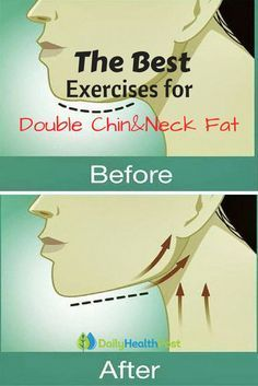 Nobody likes having a double chin! While being overweight can contribute to it…