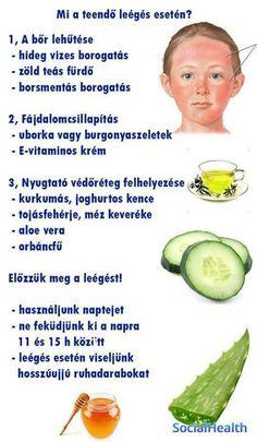 napégés enyhítésére Avocado Egg, Aloe Vera, Healthy, Breakfast, Food, Lifestyle, Learning, Morning Coffee, Essen