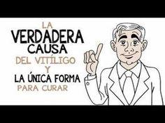 Vitamina D Cura Vitiligo-How To Cure Vitiligo Fast Disease Symptoms, Autoimmune Disease, Ayurvedic Home Remedies, Medical Textbooks, Vitiligo Treatment, Skin Grafting, Spots On Face, Emotional Stress, Get Skinny
