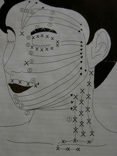 Facial cupping Chinese acupressure and drainage Facial Cupping, Cupping Massage, Facial Massage, Cupping Therapy, Body Therapy, Massage Therapy, Silicone Cupping, Chinese Cupping, How To Do Facial
