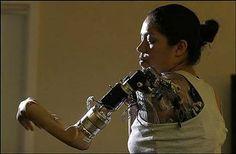 Prothèse cybernétique