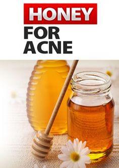 6 simple homemade honey face masks for every skin problem - acne, blackheads, dry skin, oily skin, dark spots...