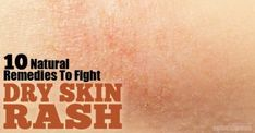 10 Natural Remedies to Fight Dry Skin Rash