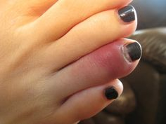 How to mend a broken toe at home just in case Natural Home Remedies, Natural Healing, Herbal Remedies, Health Remedies, Home Health, Health Tips, Health And Wellness, Health And Beauty, Wellness Tips
