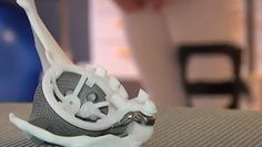 3ders.org - 3D printed hip puts teenager back on her feet | 3D Printer News & 3D Printing News
