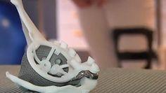 3ders.org - 3D printed hip puts teenager back on her feet | 3D Printer News & 3D Printing News