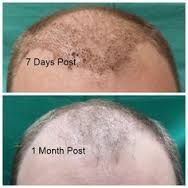 Donor Zone After 1 Month Of Hair Transplant Surgery