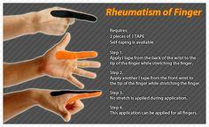 Rheumatoid Arthritis (RA) is a systemic disease that attacks  joints.