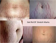 White stretch marks are usually less apparent than red stretch marks but even then they seem to be generally deeper than the red stretch marks.