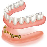 Snap on dentures are an affordable and very stable alternative for denture wearers.
