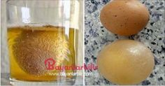 Unutulmaya yüz tutmuş doğal tedavi yöntemi bize ninelerimizden emanet...Eklem ağrılarını gideren elma sirkesi yumurta kabuğu tedavisi.