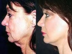 Face Exercises For Sagging Hog Jowls Trick #1 - YouTube