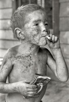 "Leatherwood, Kentucky, 1964. ""Boy covered by dirt smoking cigarette with one hand, holding can of tobacco in other."""