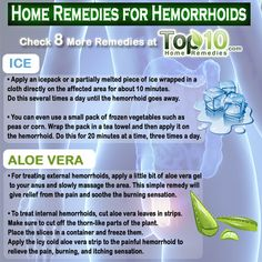 hemorrhoids home remedies
