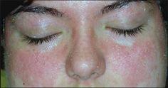Addio per sempre a dermatiti e psoriasi. La scoperta choc: Basta applicare bicarbonato e...