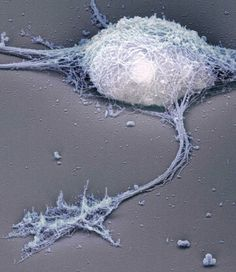 A newer twist on electron microscopy, developed in the 1980s, can reveal the internal structures of nerve cells. Researchers use a detergent to remove the cell membrane. Platinum and carbon are deposited onto the exposed surfaces to reproduce the cell's interior features as a three-dimensional mold, which is then examined in the microscope. This image shows a hippocampal neuron that has been stripped of its membrane to expose the cytoskeleton.