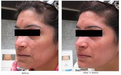 Remove sunspots and pigmentation with a little help from ZO Skin Health by Zein Obagi, MD These results were achieved after just 3 weeks!