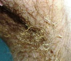 57 Best Skin Disease And Condition Images Disorders Medical Medicine