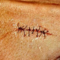 VERY easy to do VERY convincing scar! Maybe do slit wrists for a psych patient.
