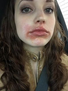 My Perioral Dermatitis Laurenda Marie Face Rash Remedies, Rashes Remedies, Rash On Face, Dry Skin On Face, Flaky Skin On Face, Contact Dermatitis Treatment, Acne Treatment, Lips, Beauty