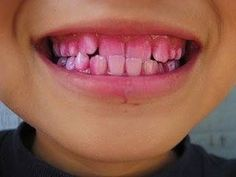 Does anyone ever really remember their Dental Hygienist coming to their classroom to talk about teeth and good oral hygiene? The kids won& School Memories, My Childhood Memories, Sweet Memories, 1970s Childhood, Childhood Toys, School Days, Those Were The Days, The Good Old Days, Nostalgia