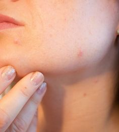 How To Have Clear Skin Men. So as to dispose of skin inflammation it is important to have the best possible parity of yeast and microscopic organisms in your stomach related tract. Best Beauty Tips, Beauty Care, Beauty Hacks, Diabetes, Aromatherapy Recipes, Skin Tag Removal, How To Get Rid Of Acne, Homemade Face Masks, People